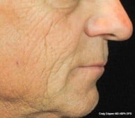 sun damage before dermmedica