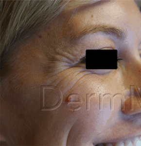 Botox – Before & After Crows Feet