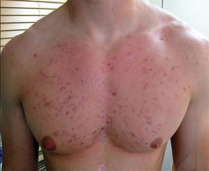 Acne Scars on Chest & Back