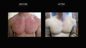 acne-treatment-kelowna