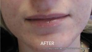 Acne – Chin & Cheeks