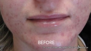 acne-treatment-kelowna