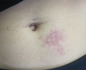 Vascular Birthmark Treatment with Laser