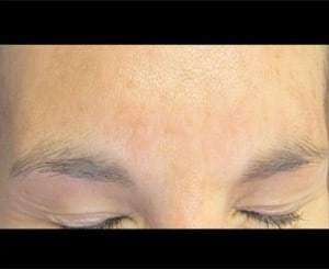 More Forehead Botox Before & After Photos