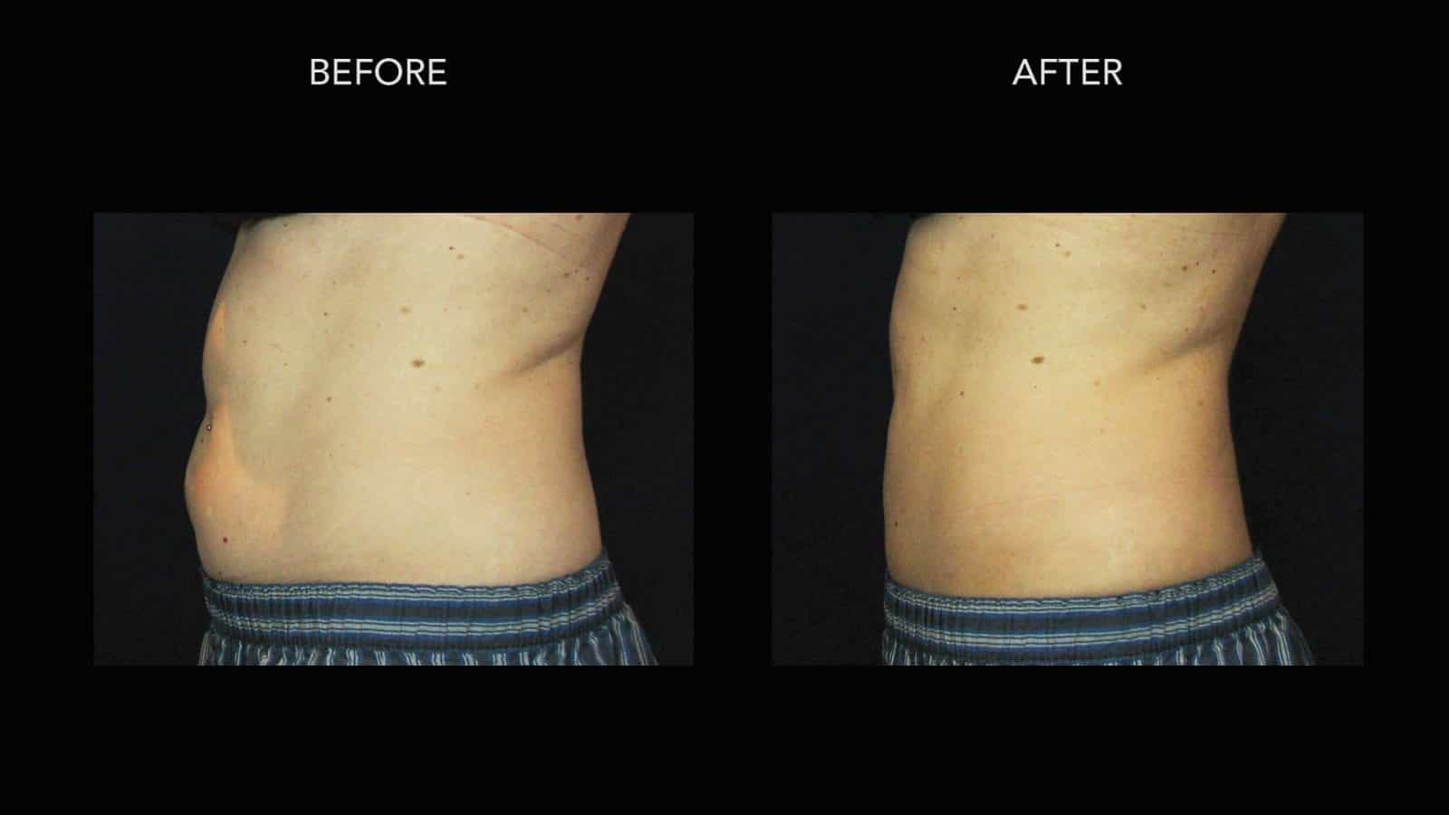 Coolsculpting Before After Photos Dermmedica