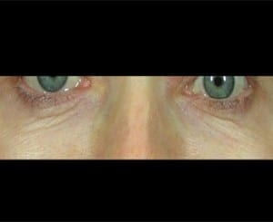 fractional-laser-treatment