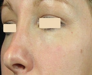 Fractional Treatments