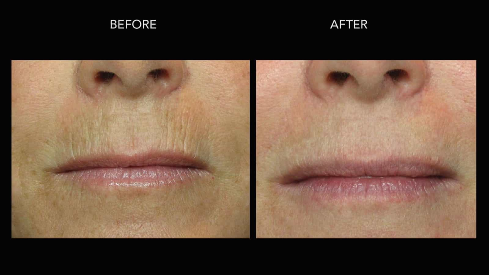 Fractional Treatments Before Amp After Photos Dermmedica