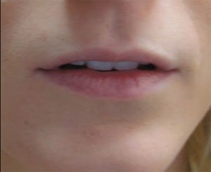 Juvederm Filler for Thin Lips