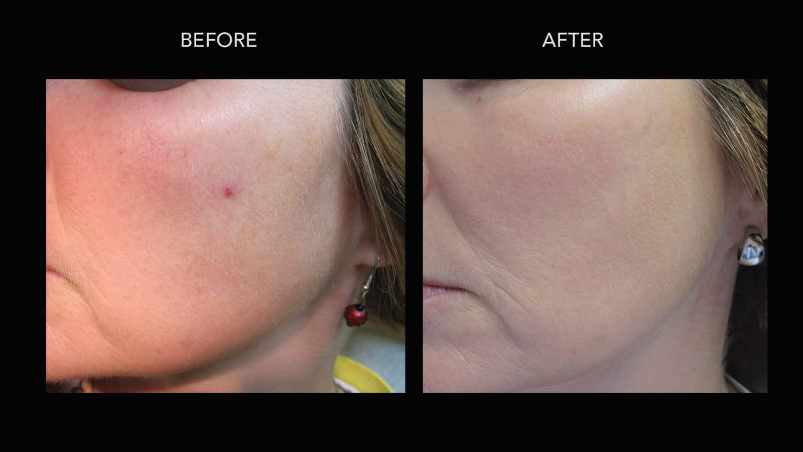 Rosacea: treatment, reviews. Facial Rosacea: Laser Treatment 3