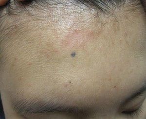 Mole Removal: Before & After Photos | DermMedica