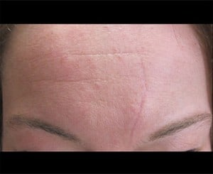 Scar Treatments