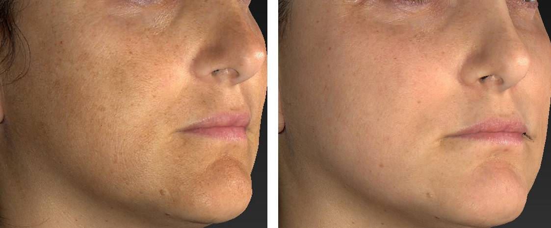 Fractional Treatments Before & After Photos |DermMedica