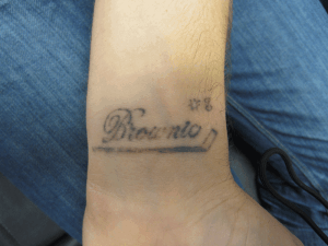 Tattoo Removal Wrist