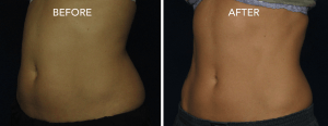 coolsculpting-abdomen