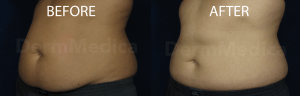 coolsculpting-abdomen-before-and-after