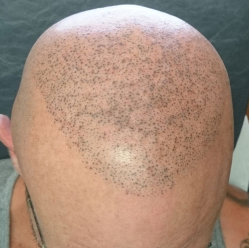 scalp-micro-pigmentation-before