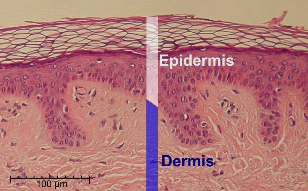 Epidermis01