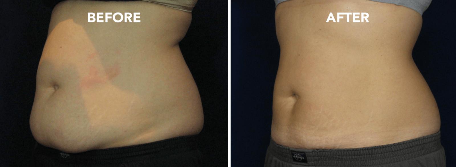 Coolsculpting: Before/After Photos | DermMedica