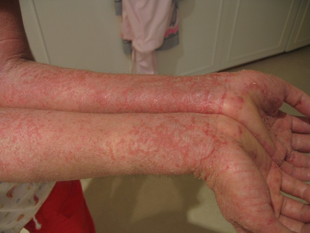 Eczema-arms