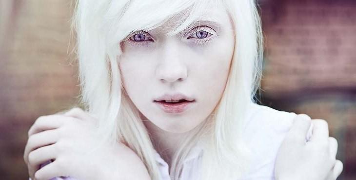 Albinism Albino
