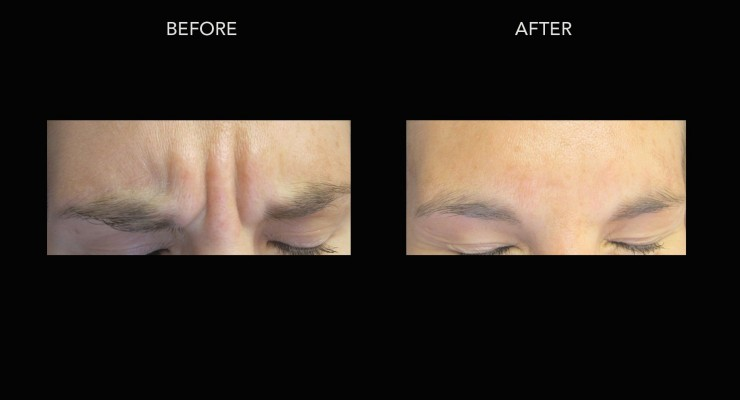 Botox – Between Brow