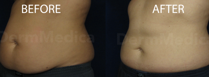 CoolSculpting Abdomen