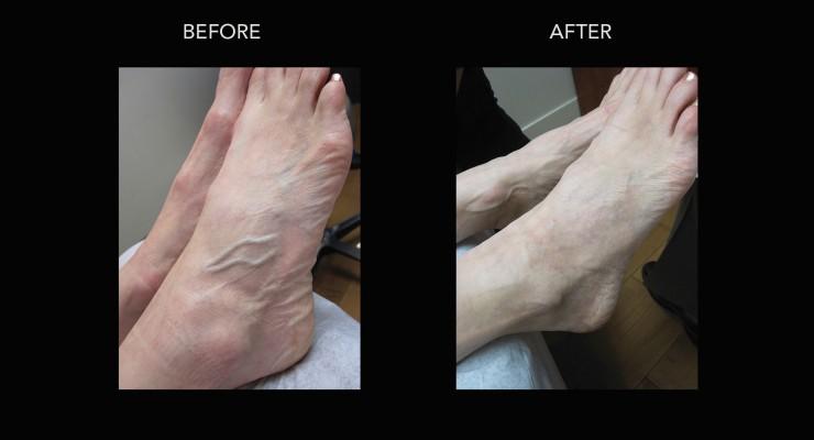 Vein Treatments