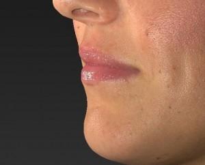 Lip Filler Before and After Photos | DermMedica Kelowna, BC