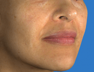 Juvederm Filler for Naso-Labial Folds