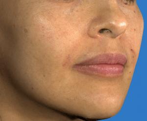 Juvederm Filler for Naso-Labial Folds