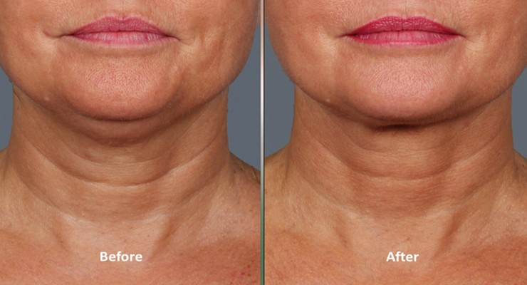 kybella belkyra before after