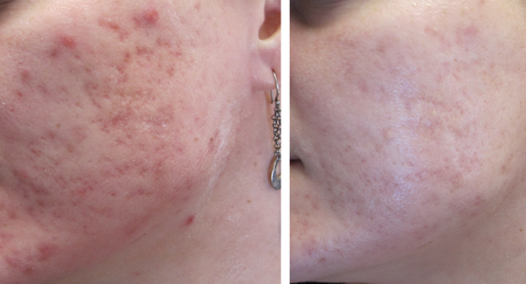acne-scar-treatmnet-before-after