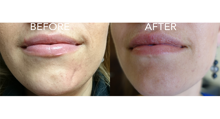 chin-scar-after-filler