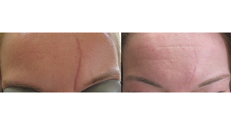 forehead-scar-before-after-laser