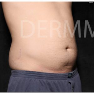 CoolSculpting Male Abdomen
