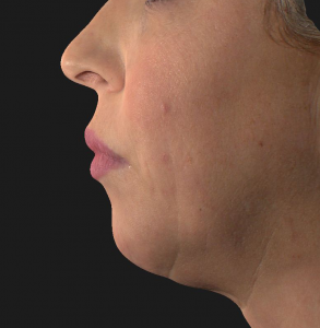Chin Filler – Before and Right After