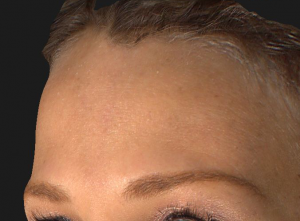 Botox Cosmetic – Forehead