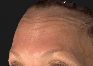Botox Cosmetic – Forehead