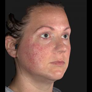 Acne – Facial